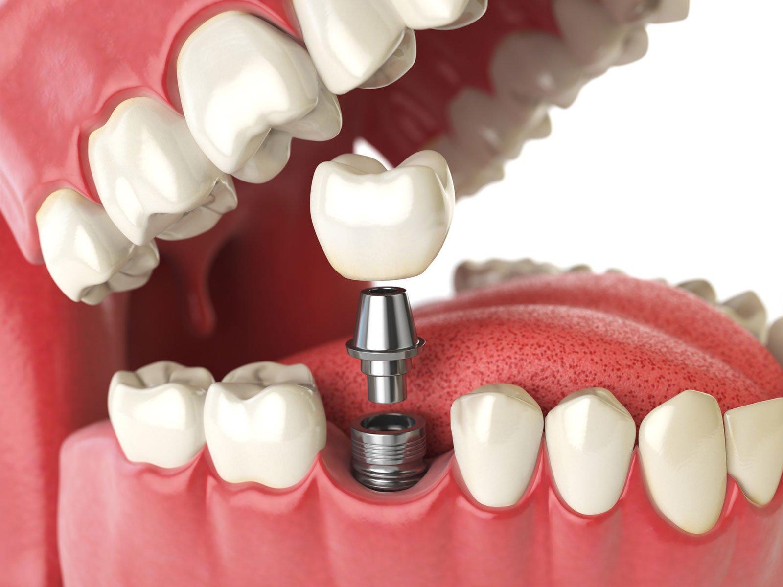 Hier zu sehen ist ein Gebiss mit Implantat | Zahnarztpraxis Hartmann