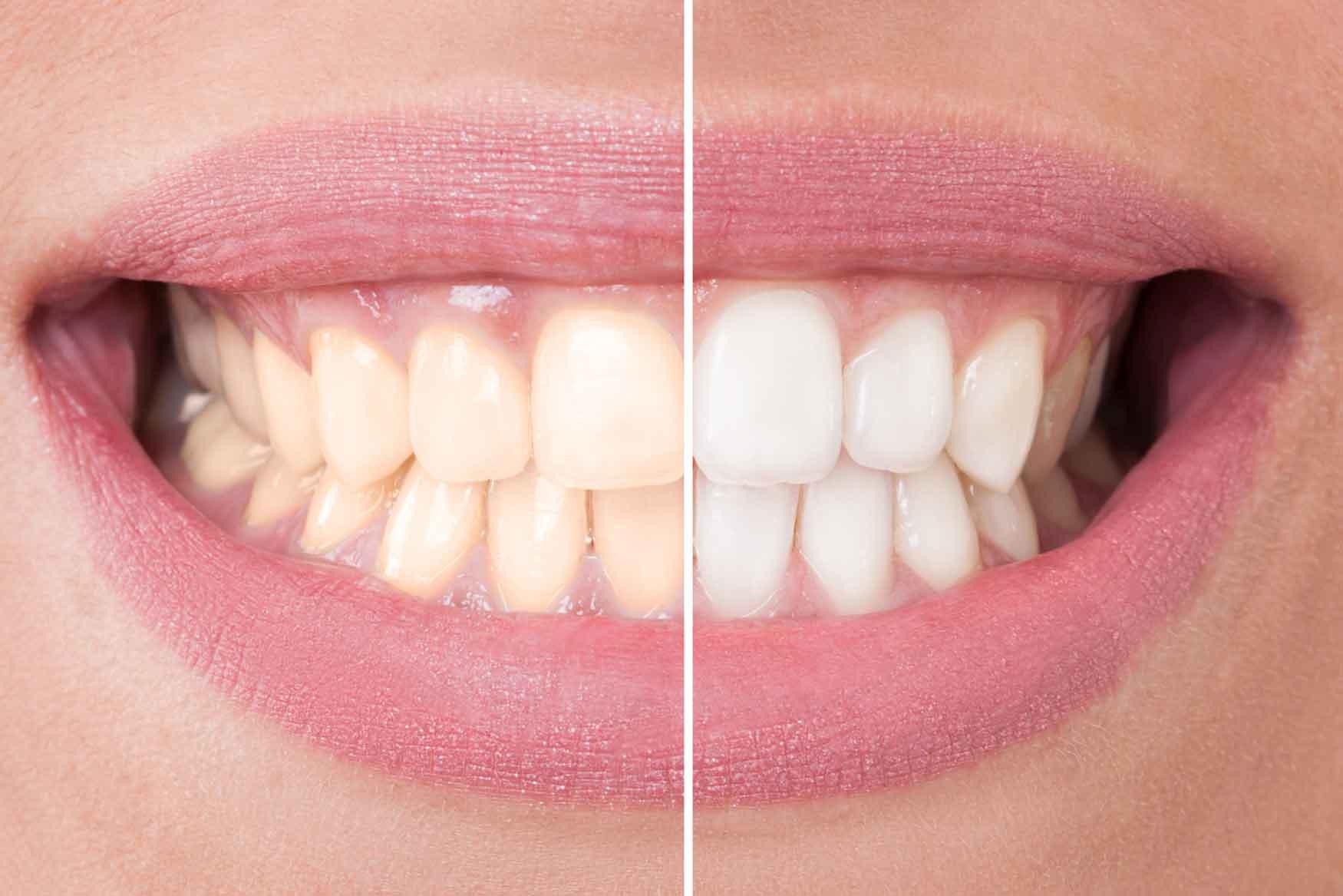 Hier zu sehen ist ein Vorher-Nachher Vergleich eines Bleaching | Zahnarztpraxis Hartmann