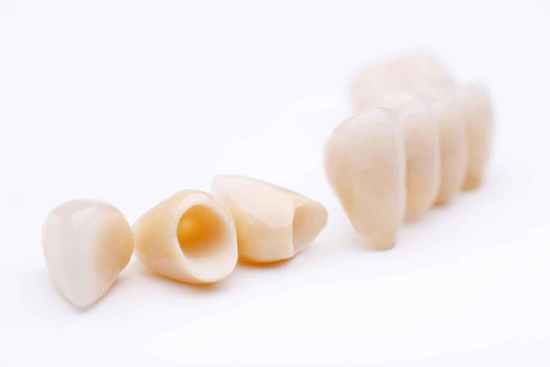 Hier zu sehen ist ein Zahnersatz in verschiedenen Größen | Zahnarztpraxis Hartmann